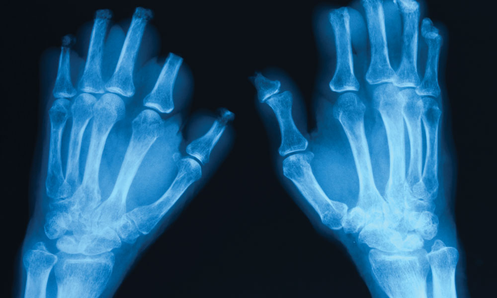 What You Should Know About Scaphoid Fractures