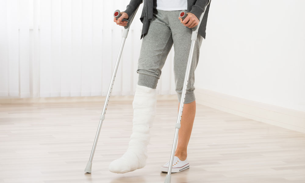 How Do You Make a Claim for a Broken Bone?