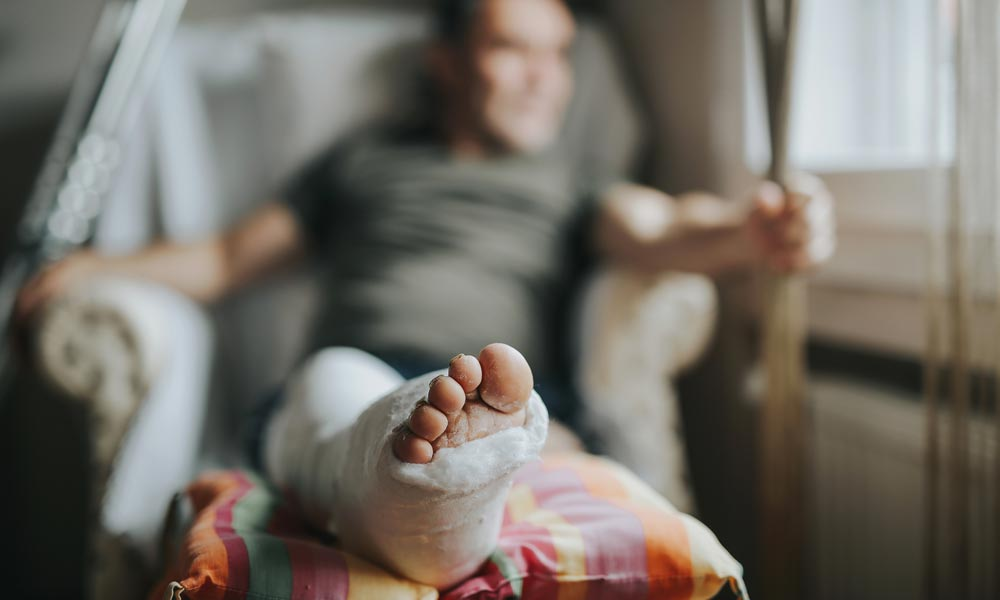 An Overview of Limb Injuries and Amputations